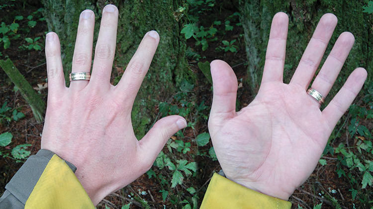 What is Raynaud's Syndrome - Jonas' Hands